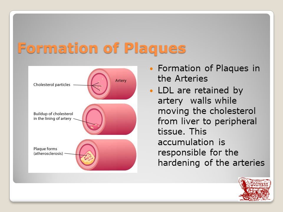 Formation of Plaques Formation of Plaques in the Arteries