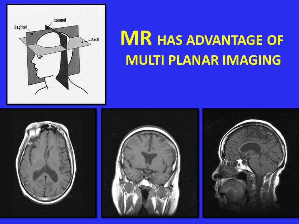 MR HAS ADVANTAGE OF MULTI PLANAR IMAGING