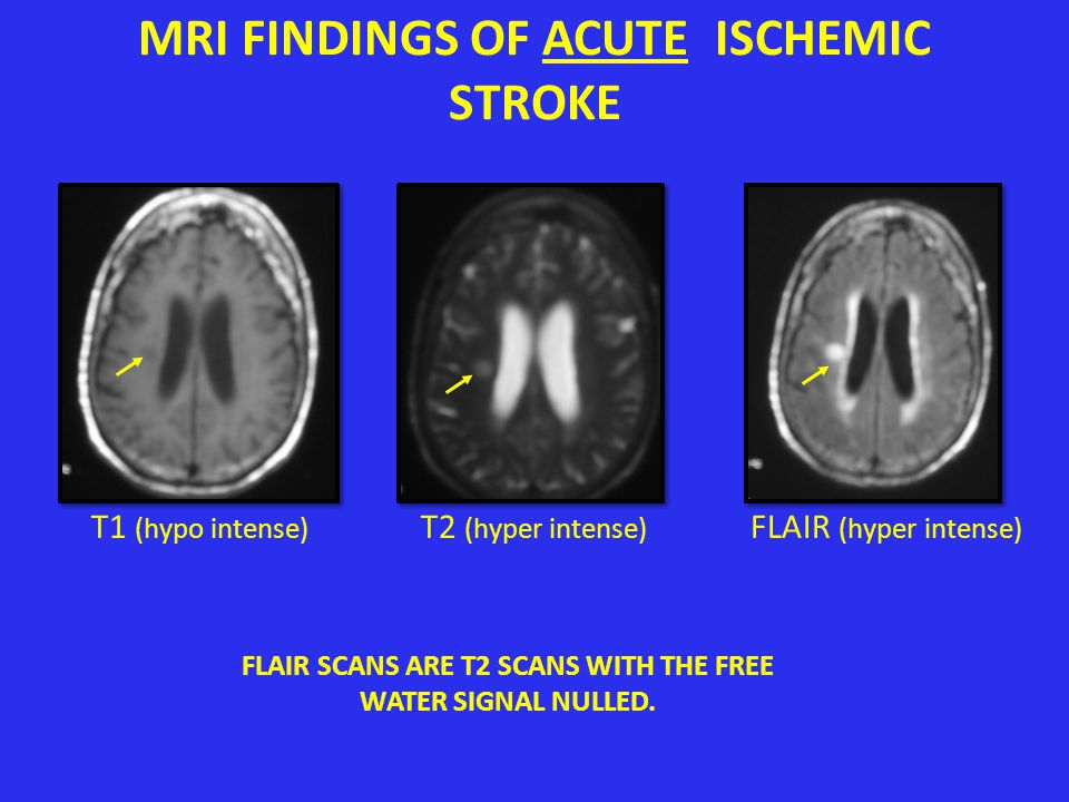 MRI FINDINGS OF ACUTE ISCHEMIC STROKE