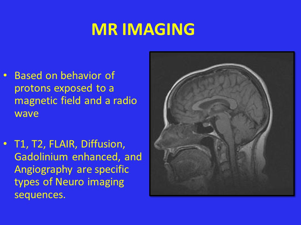 MR IMAGING Based on behavior of protons exposed to a magnetic field and a radio wave.