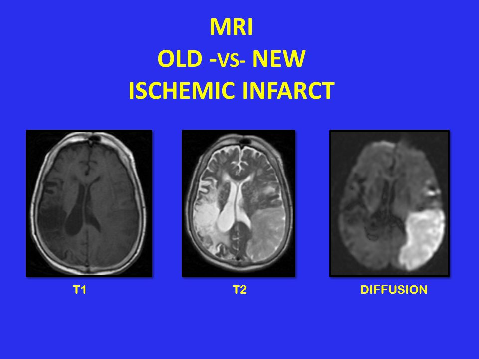 MRI OLD -VS- NEW ISCHEMIC INFARCT