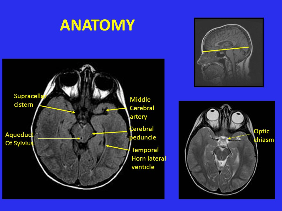 ANATOMY Supracellar cistern Middle Cerebral artery Cerebral Optic