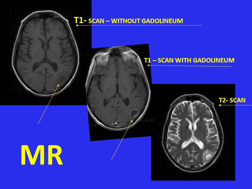 MR T1- SCAN – WITHOUT GADOLINEUM T1 – SCAN WITH GADOLINEUM T2- SCAN T2
