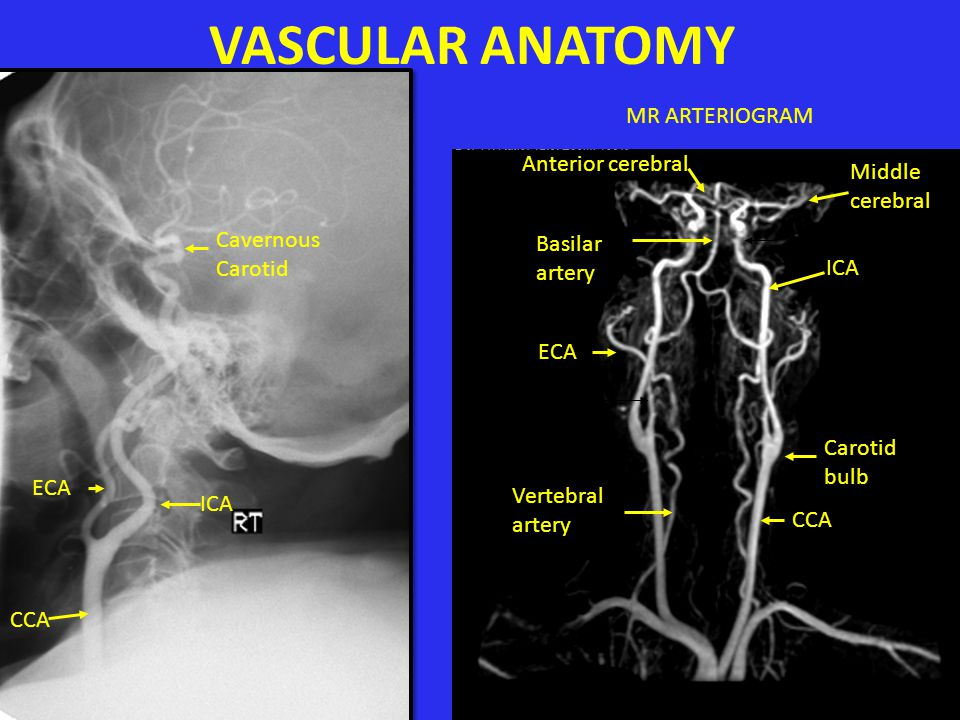 VASCULAR ANATOMY MR ARTERIOGRAM Anterior cerebral Middle cerebral