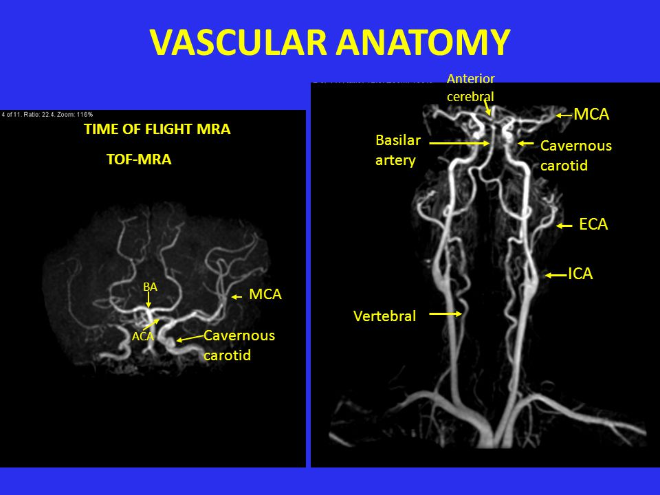VASCULAR ANATOMY MCA ECA ICA TIME OF FLIGHT MRA TOF-MRA Basilar