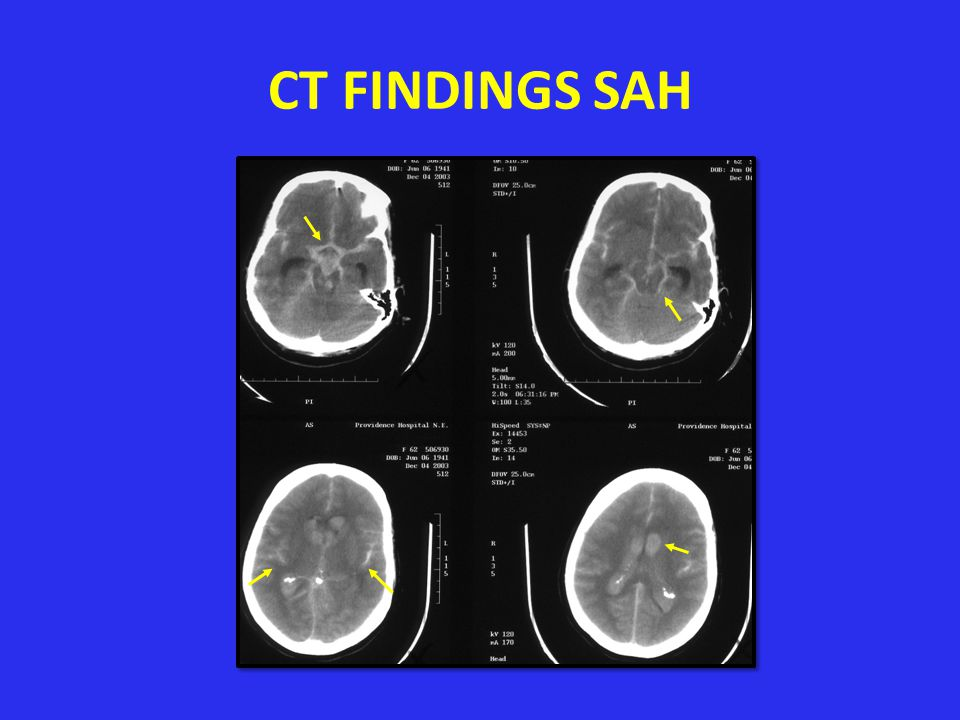 CT FINDINGS SAH