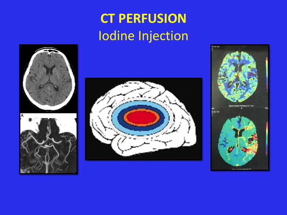 CT PERFUSION Iodine Injection