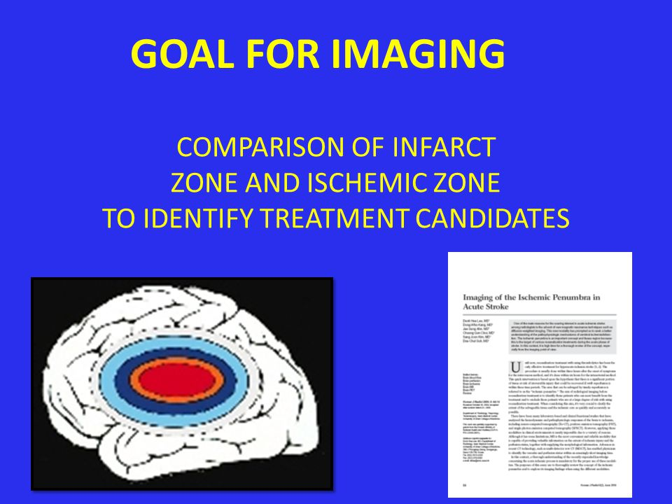 GOAL FOR IMAGING COMPARISON OF INFARCT ZONE AND ISCHEMIC ZONE TO IDENTIFY TREATMENT CANDIDATES 48