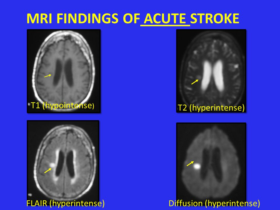 MRI FINDINGS OF ACUTE STROKE