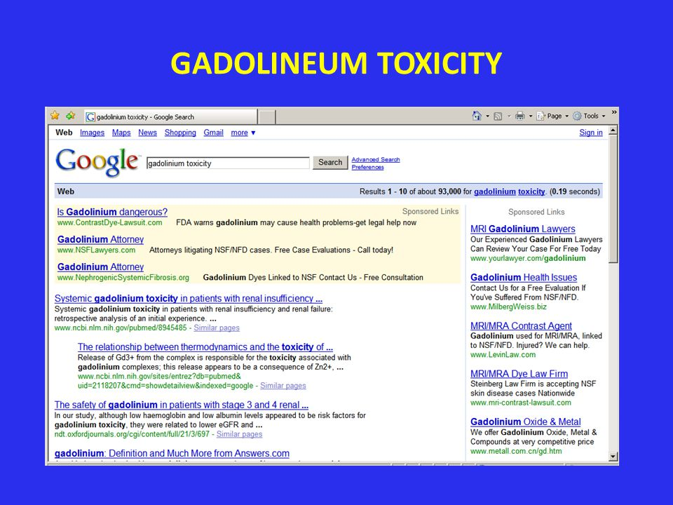 GADOLINEUM TOXICITY Google searches show the attorneys are interested at least. 9