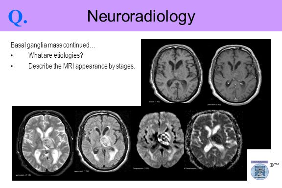 Q. Neuroradiology Basal ganglia mass continued… What are etiologies