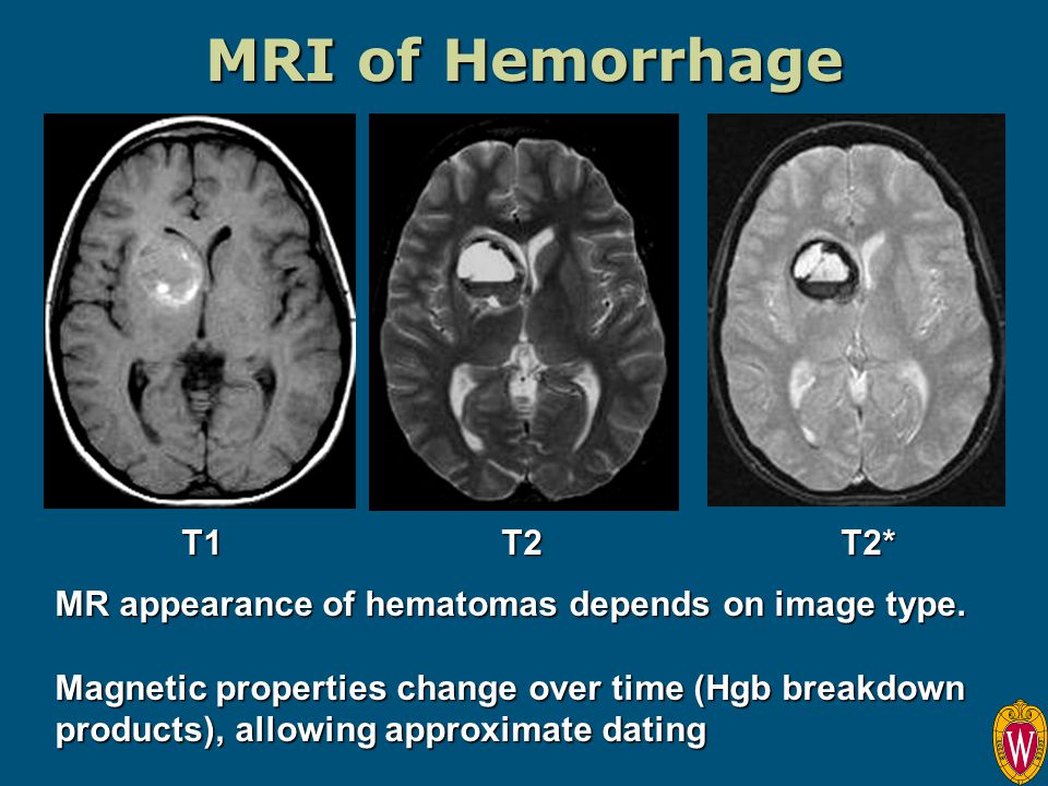 dating subdural hemorrhage