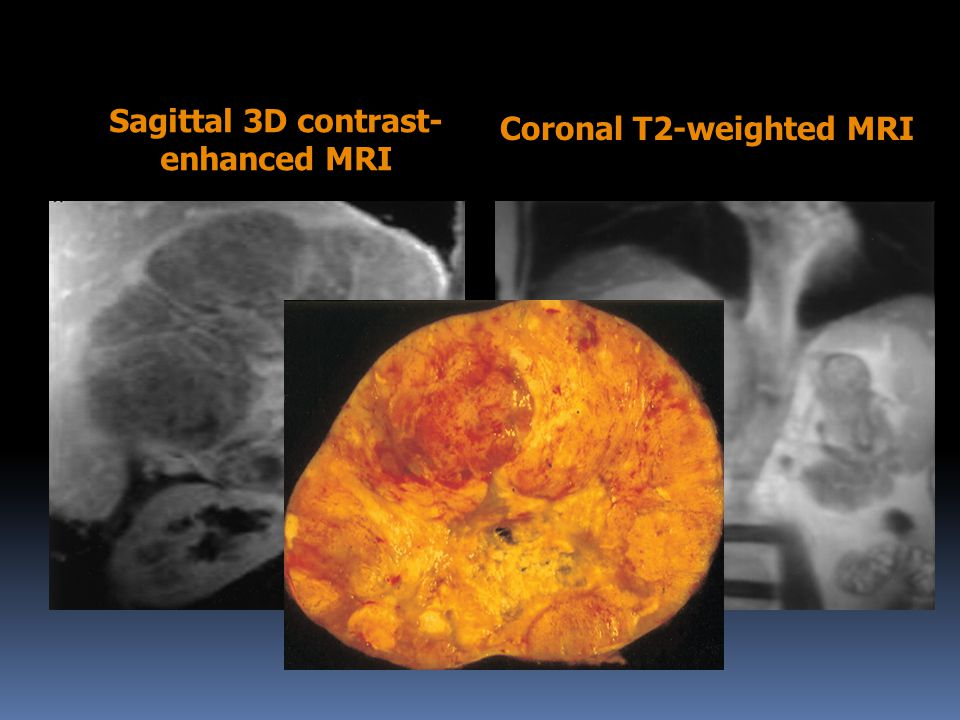 Sagittal 3D contrast-enhanced MRI Coronal T2-weighted MRI