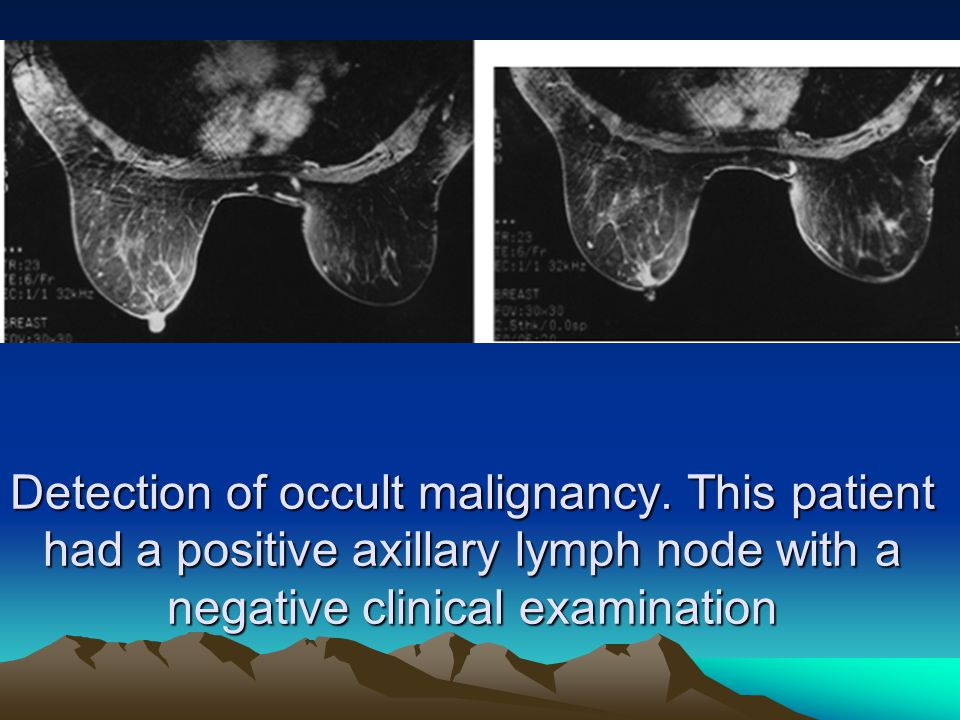 Detection of occult malignancy