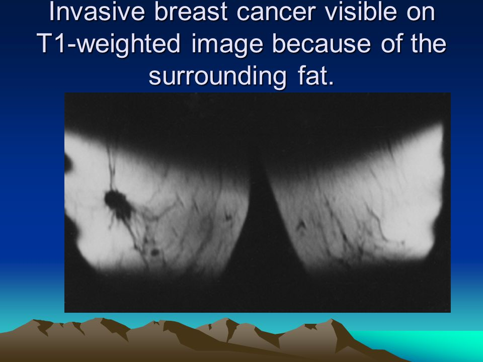 Invasive breast cancer visible on T1-weighted image because of the surrounding fat.