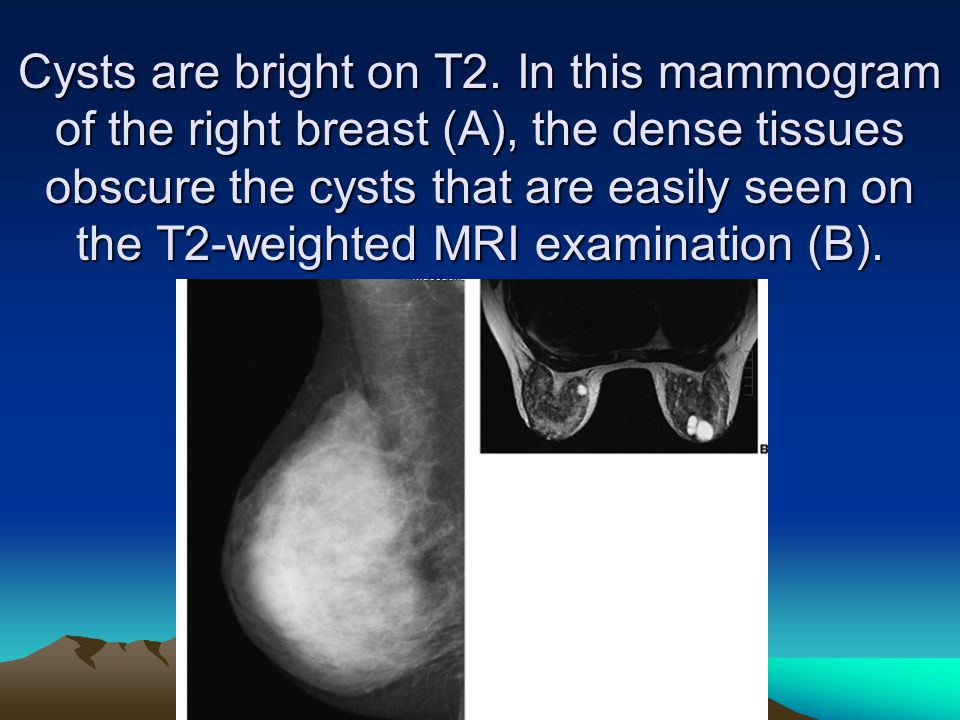 Cysts are bright on T2.