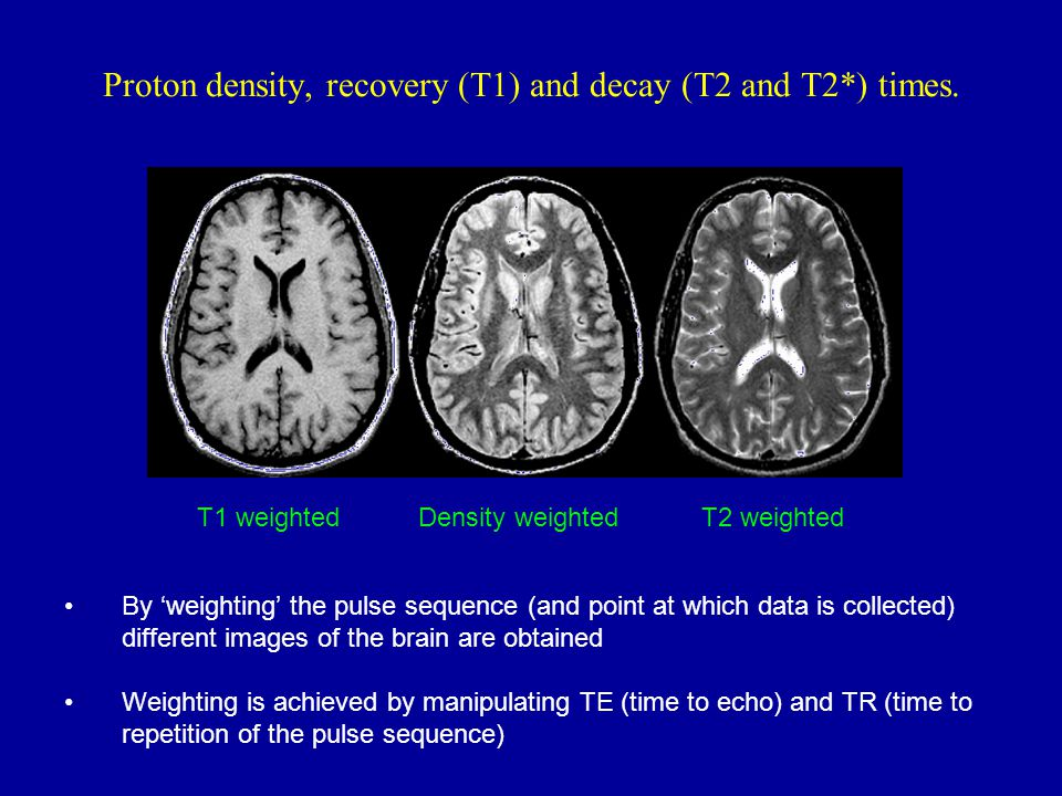 Proton density, recovery (T1) and decay (T2 and T2*) times.