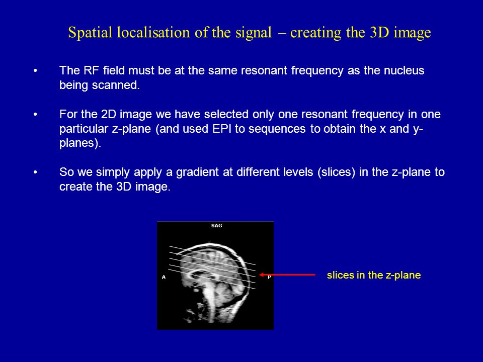 Spatial localisation of the signal – creating the 3D image