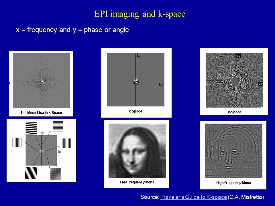 EPI imaging and k-space