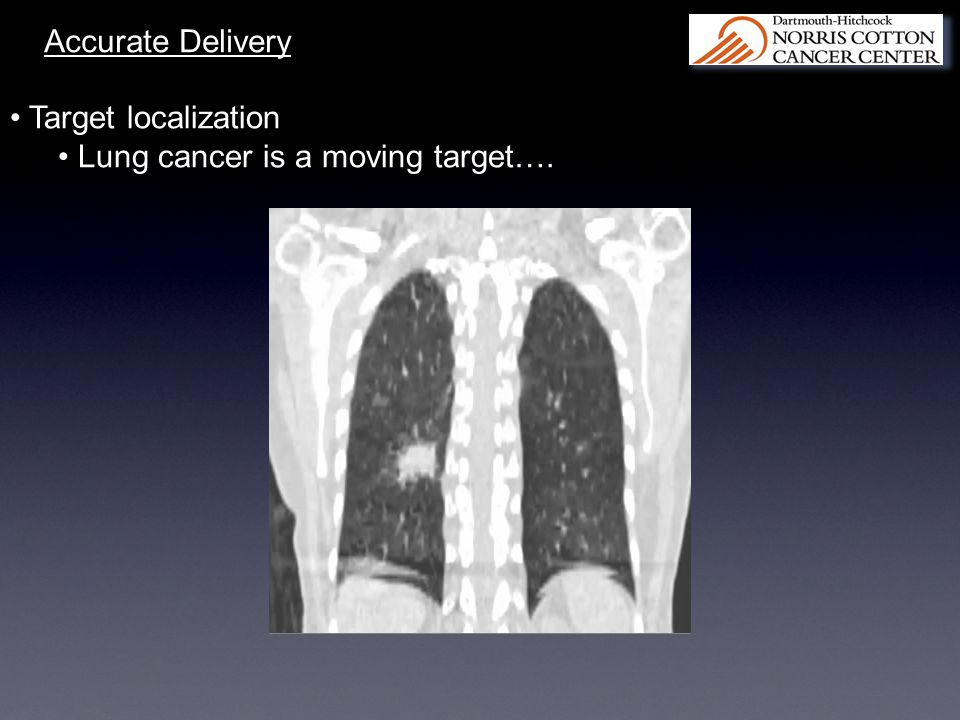 Accurate Delivery Target localization Lung cancer is a moving target….