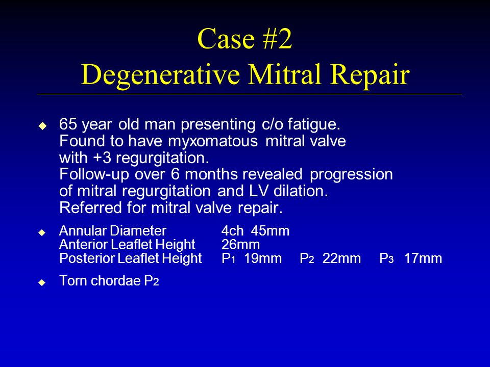 Case #2 Degenerative Mitral Repair