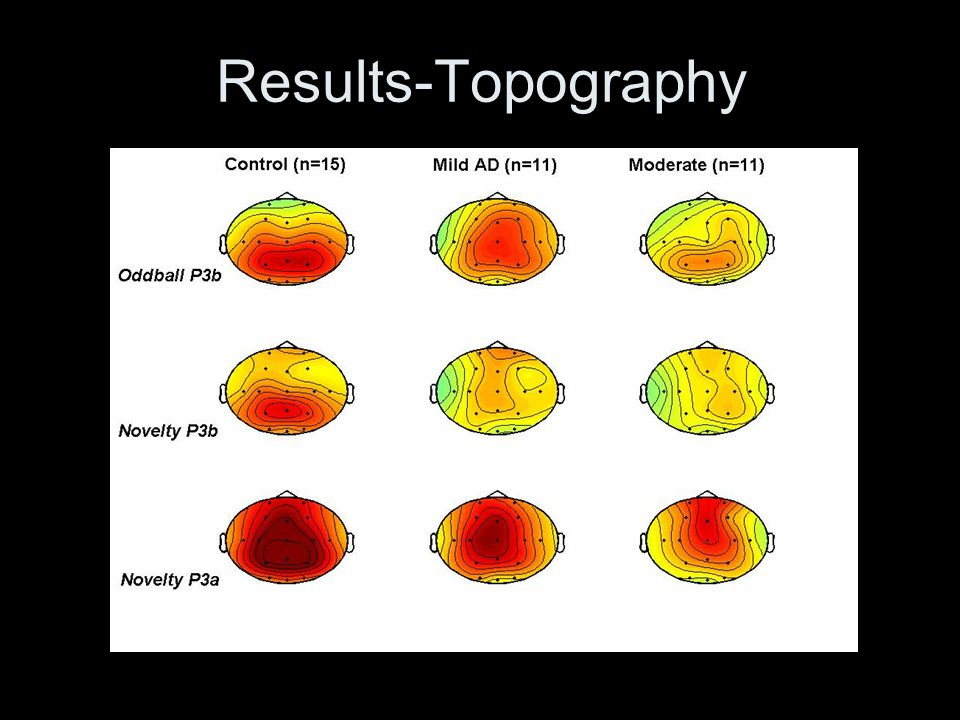 Results-Topography