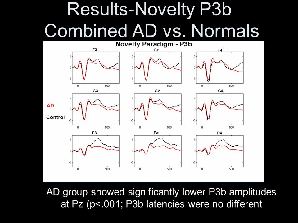 Results-Novelty P3b Combined AD vs. Normals