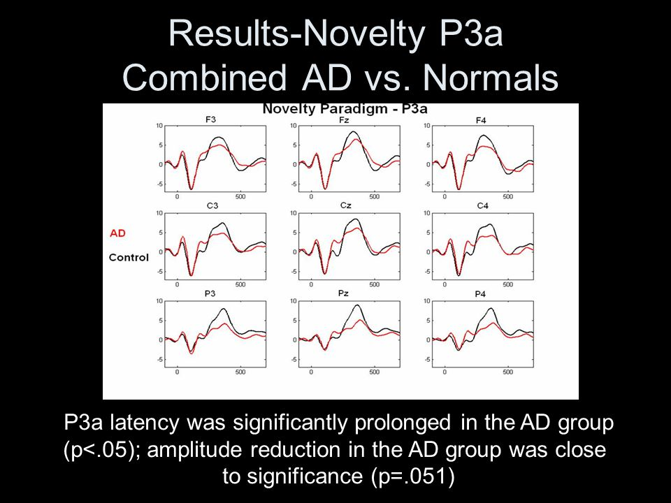 Results-Novelty P3a Combined AD vs. Normals