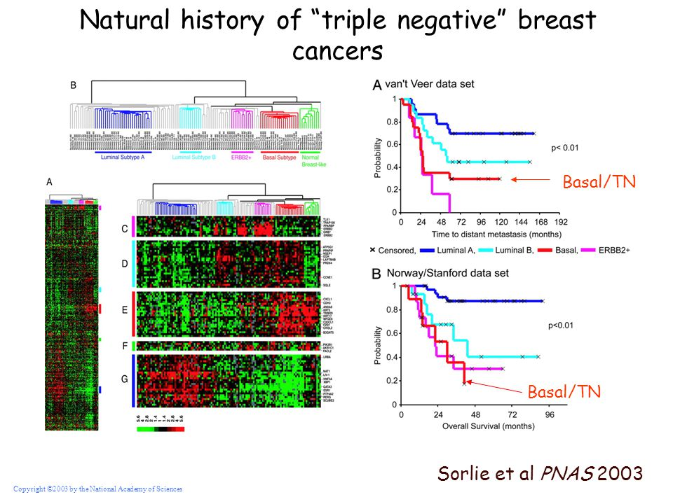 Natural history of triple negative breast cancers