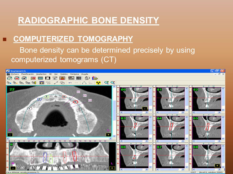 RADIOGRAPHIC BONE DENSITY