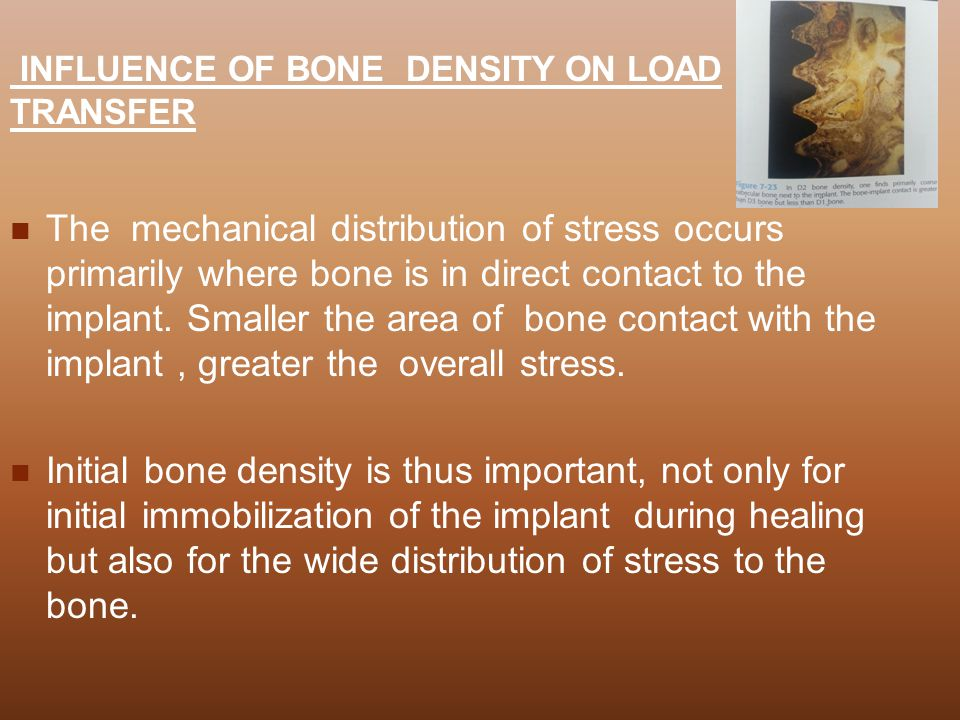 INFLUENCE OF BONE DENSITY ON LOAD TRANSFER