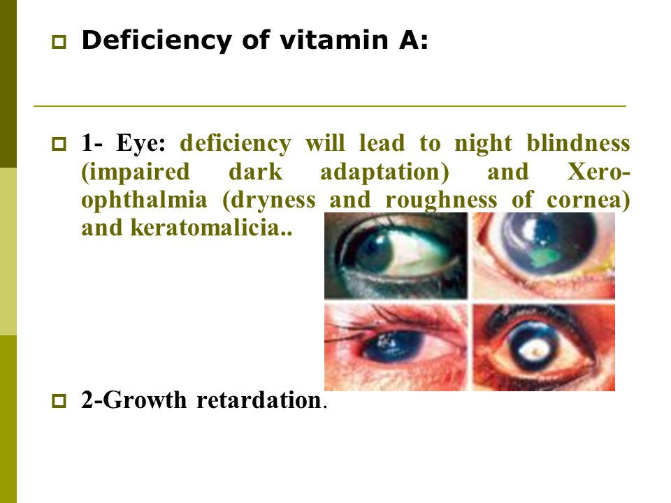 Deficiency of vitamin A: