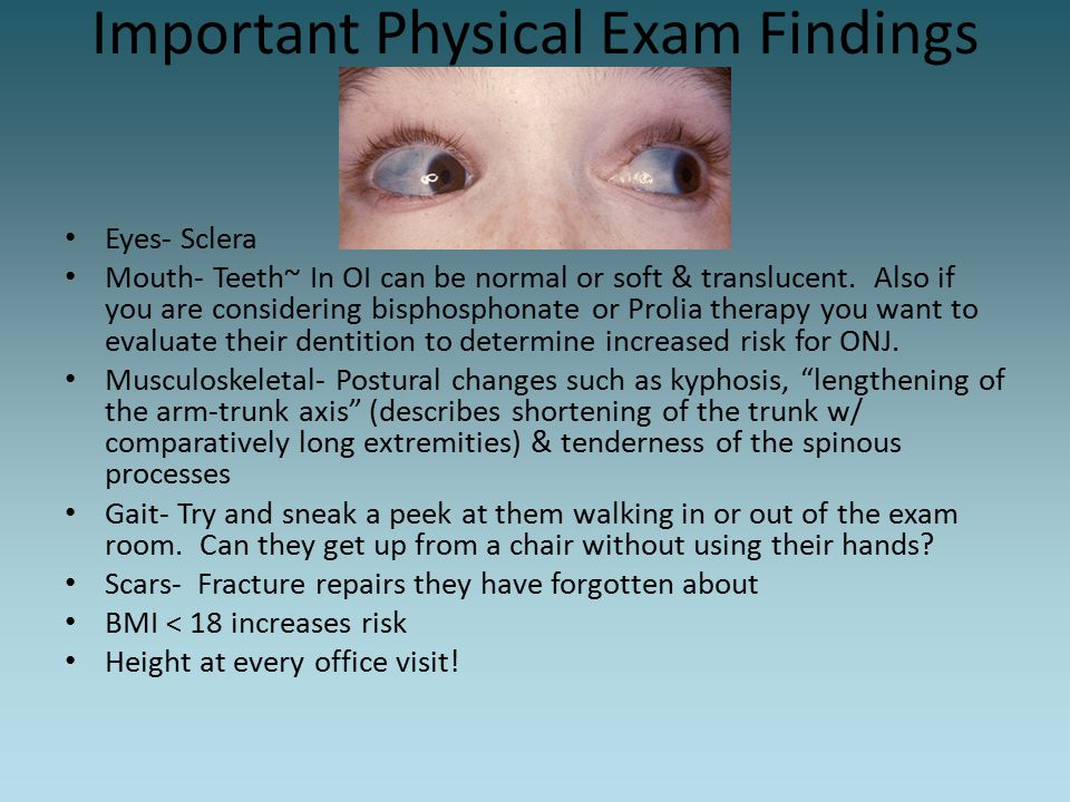 Important Physical Exam Findings