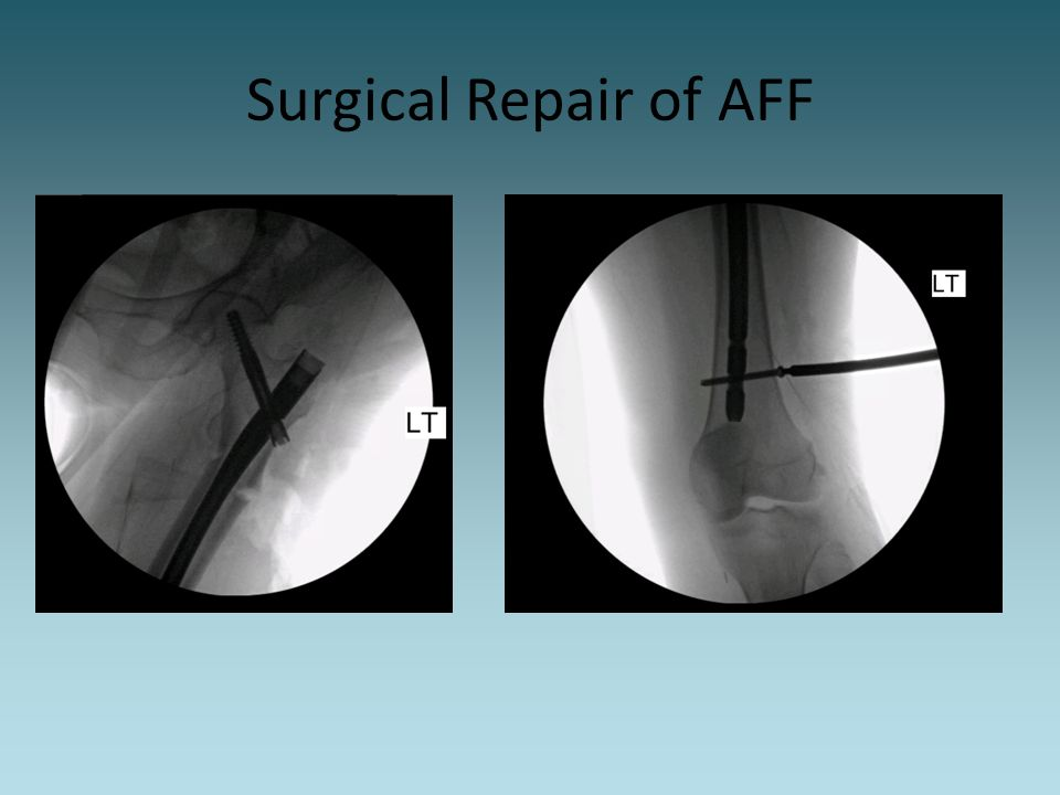 Surgical Repair of AFF