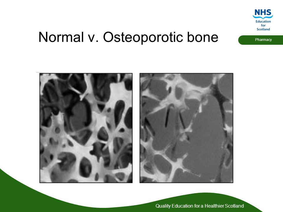 Normal v. Osteoporotic bone