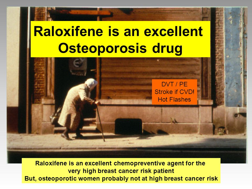 Raloxifene is an excellent Osteoporosis drug