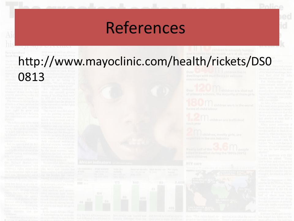 References http://www.mayoclinic.com/health/rickets/DS00813
