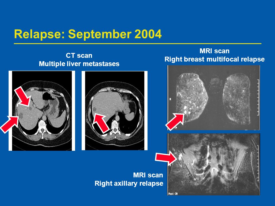 Right breast multifocal relapse Multiple liver metastases