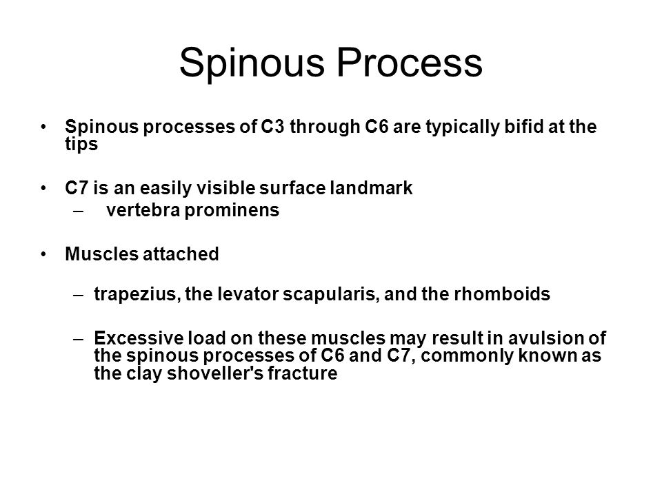 Spinous Process Spinous processes of C3 through C6 are typically bifid at the tips. C7 is an easily visible surface landmark.