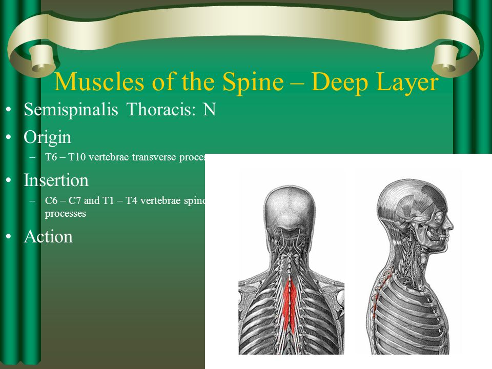 Spinal Injuries Chapter Ppt Video Online Download