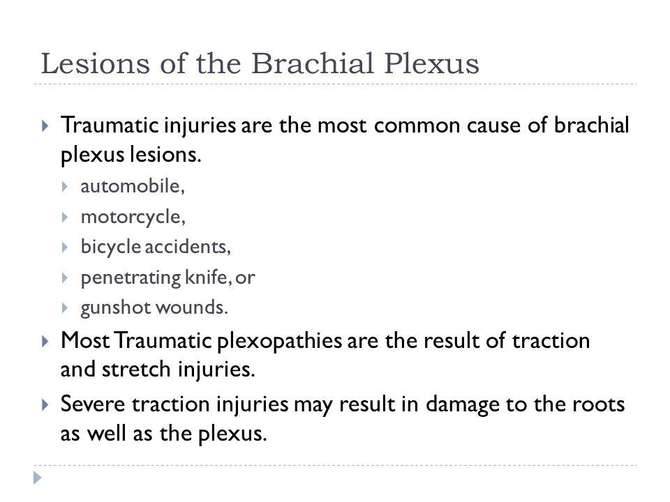 Brachial Plexus Subway Map.Brachial Plexus Stuff I Have To Study T
