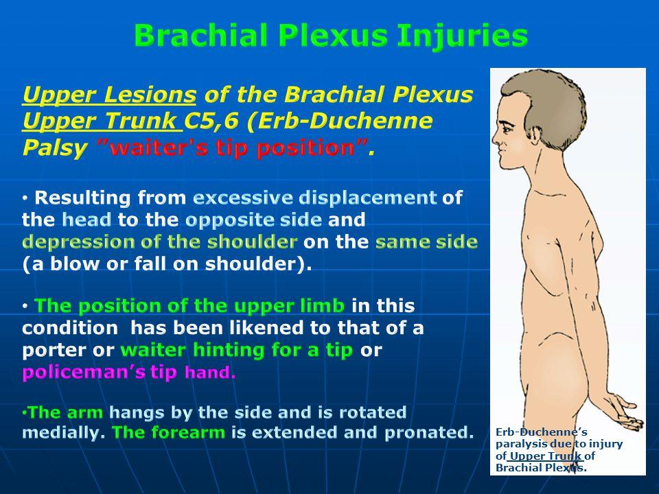 brachial plexus amp radial nerve ppt video online download