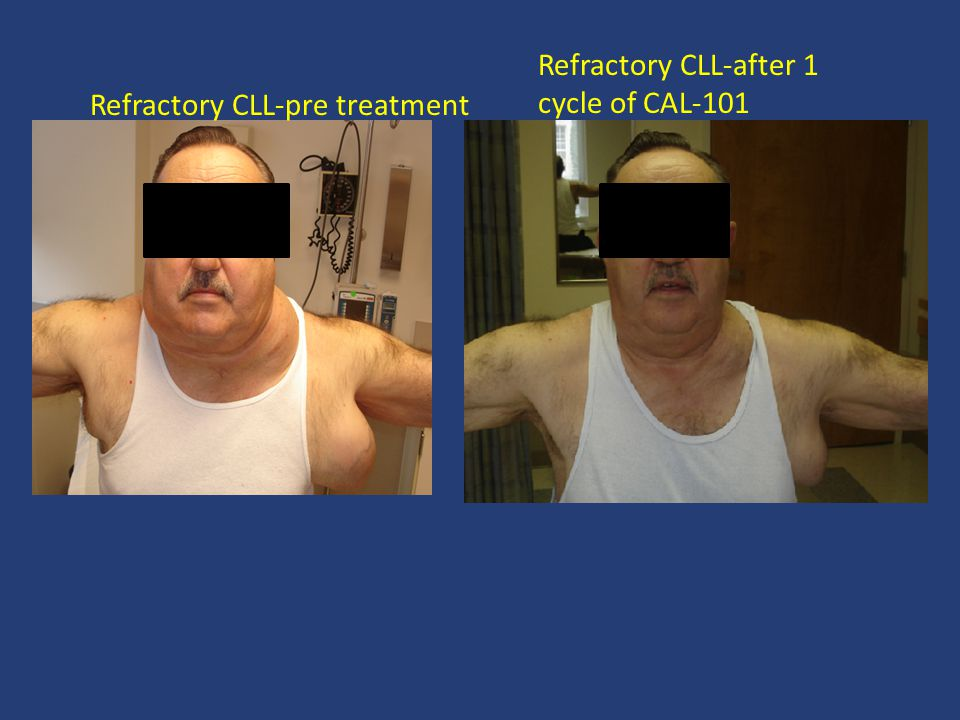 Refractory CLL-after 1 cycle of CAL-101 Refractory CLL-pre treatment