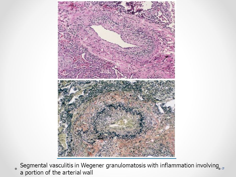 Segmental vasculitis in Wegener granulomatosis with inflammation involving a portion of the arterial wall