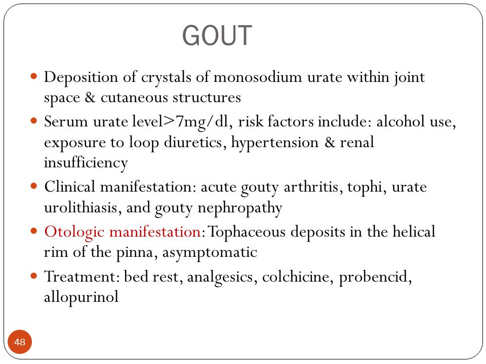 GOUT Deposition of crystals of monosodium urate within joint space & cutaneous structures.