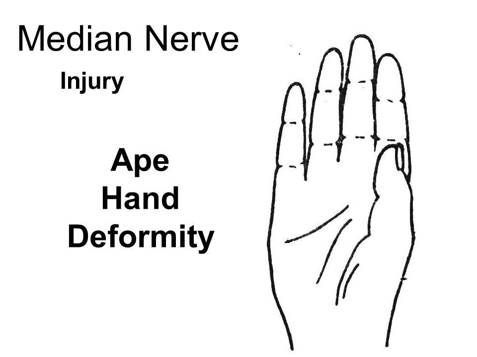 Nerves Ppt Video Online Download
