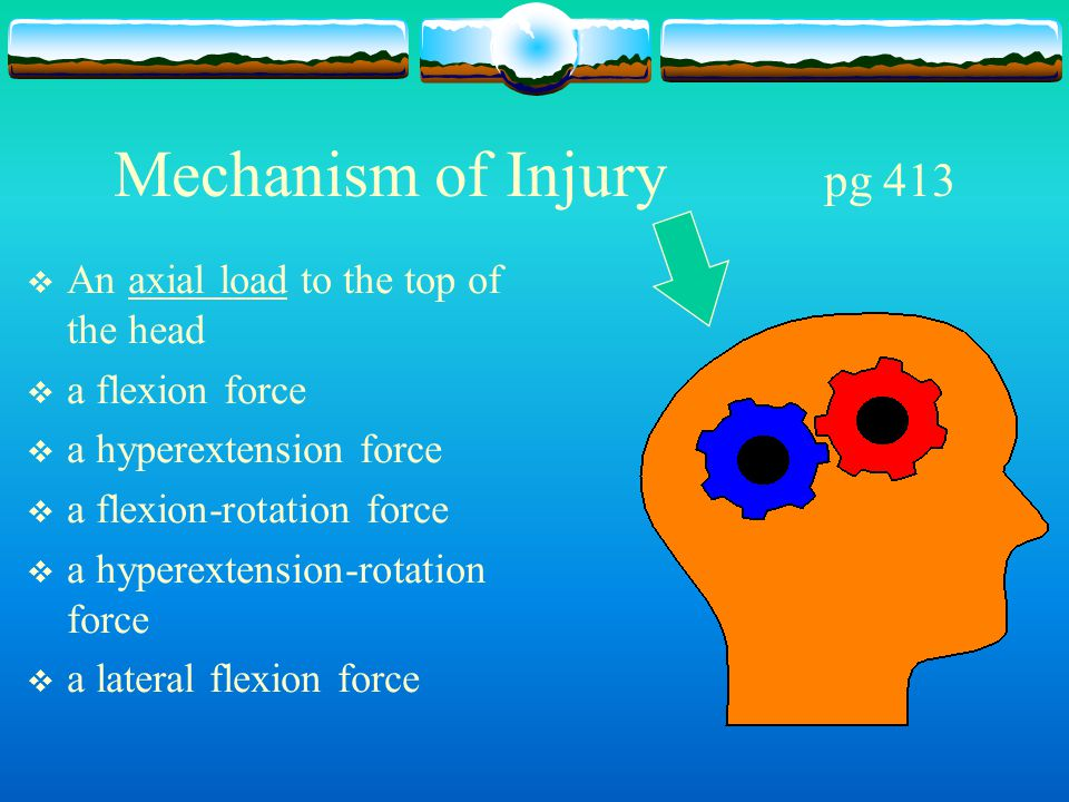 Mechanism of Injury pg 413 An axial load to the top of the head