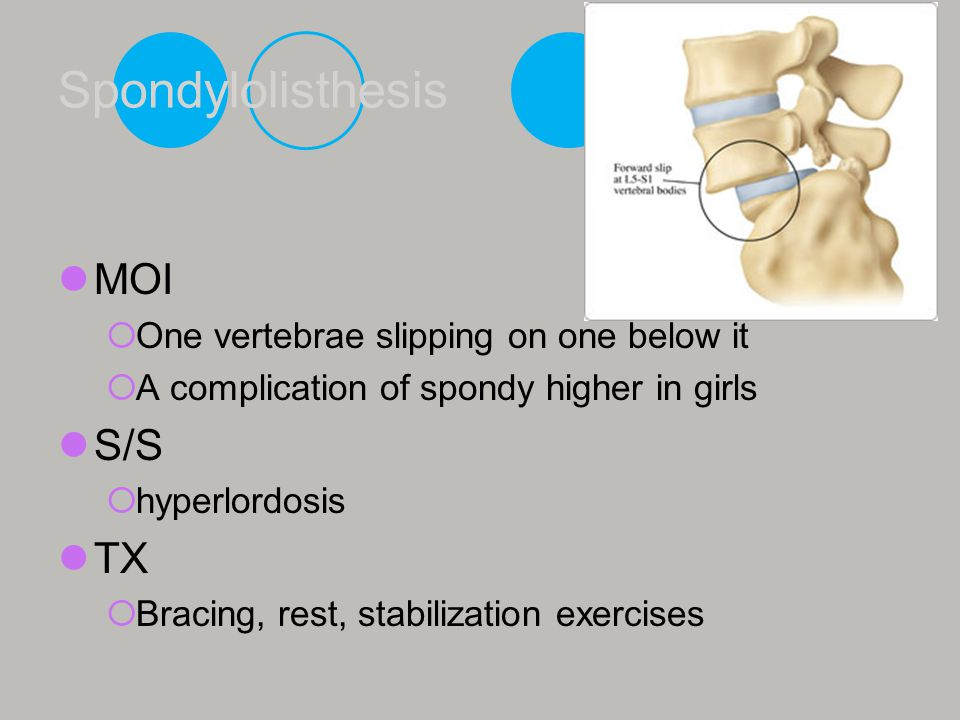 Spondylolisthesis MOI S/S TX One vertebrae slipping on one below it