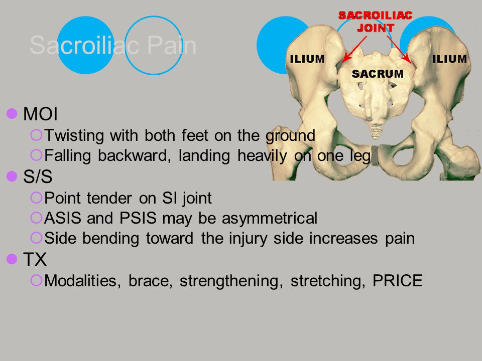 Sacroiliac Pain MOI S/S TX Twisting with both feet on the ground