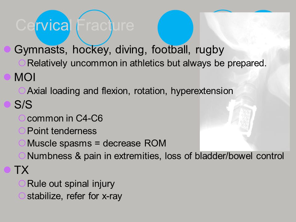 Cervical Fracture Gymnasts, hockey, diving, football, rugby MOI S/S TX